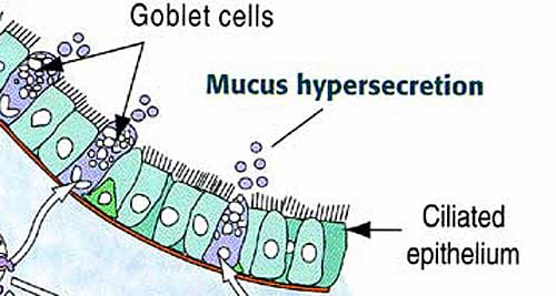Goblet Cell Diagram Goblet Cells Are Replaced by